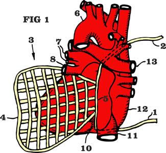 heartnet-figure-1